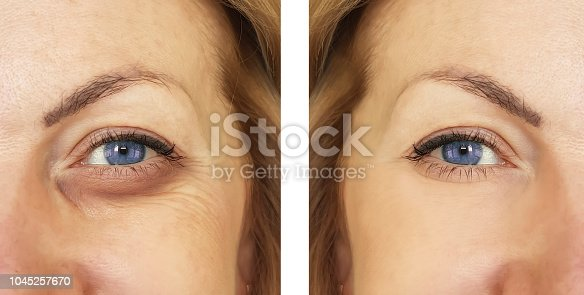 istock woman, eye swollen before and after procedures, treatm 1045257670