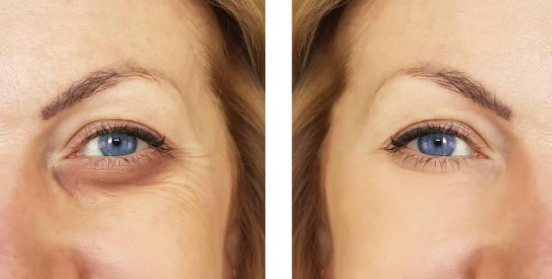 여자, 눈 부 절차, treatm 전후 - 주름 뉴스 사진 이미지