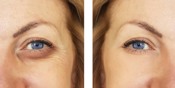 woman, eye swollen before and after procedures, treatm woman, eye swollen before and after procedures, treatm antiaging stock pictures, royalty-free photos & images