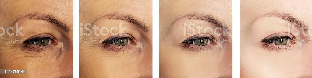woman eye wrinkles before and after procedures retouching