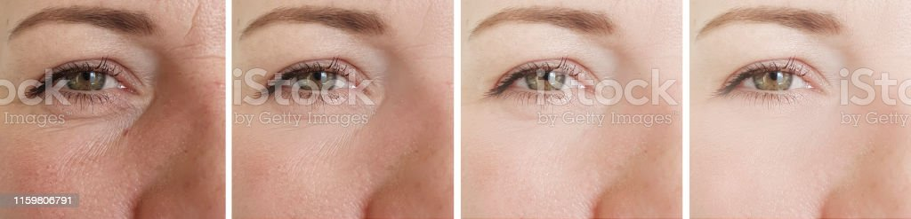 woman eyes wrinkles before and after treatment
