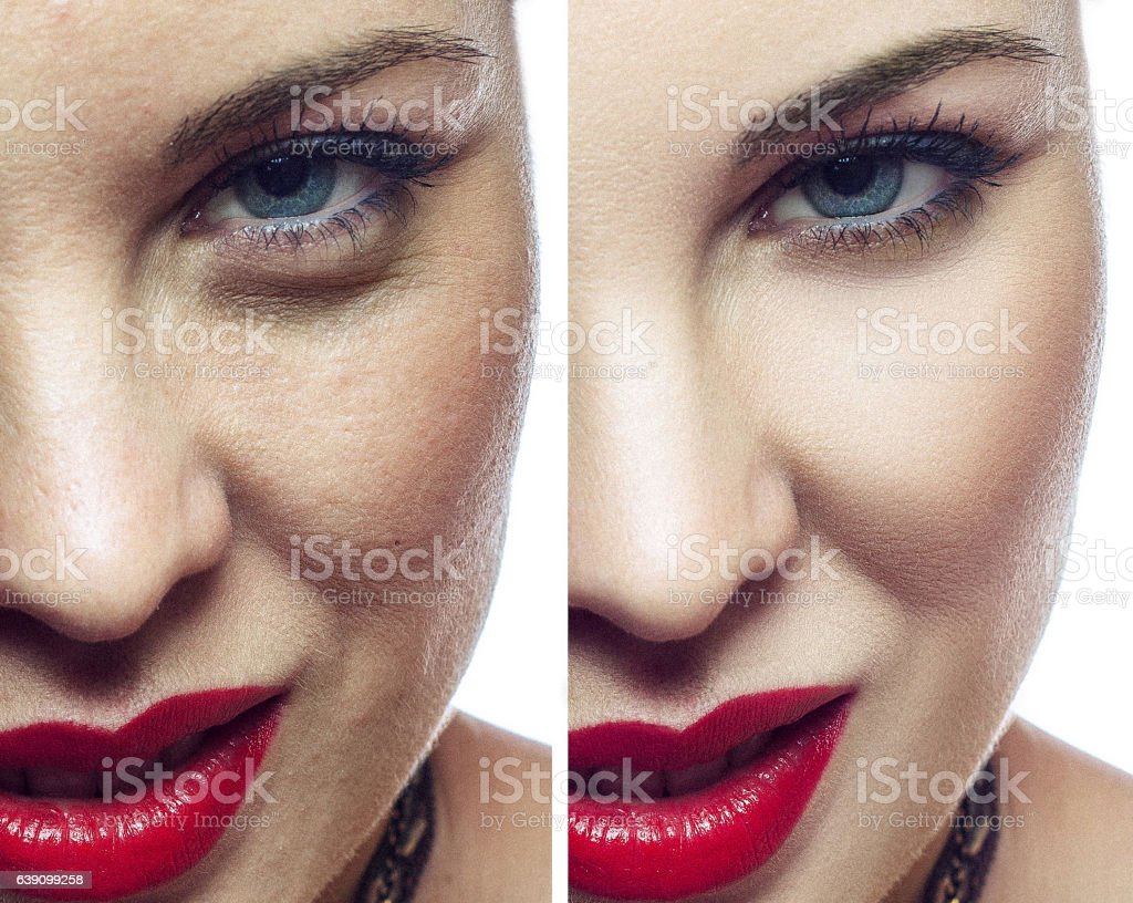 Woman face before and after cosmetic procedure. stock photo