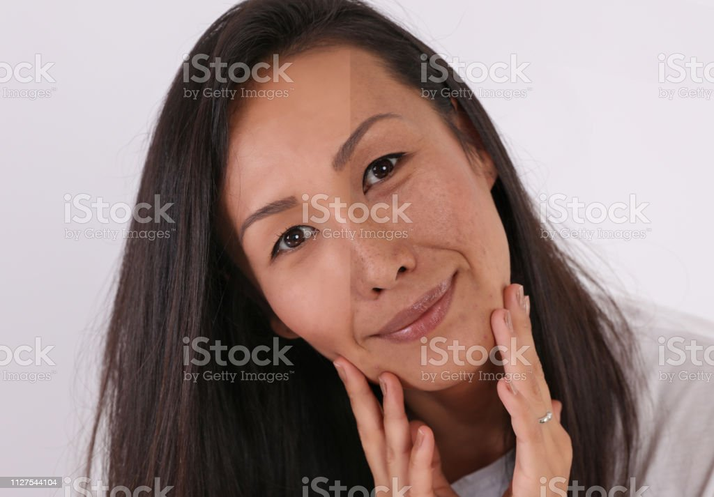 Woman face before and after professional makeup comparison, covering pimple scars and acne with powder foundation stock photo