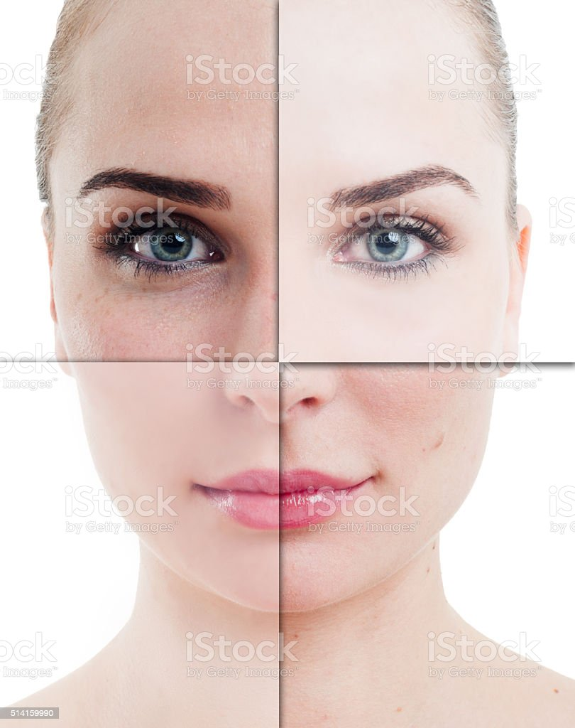 Woman face divided in parts with perfect and imperfect skin stock photo