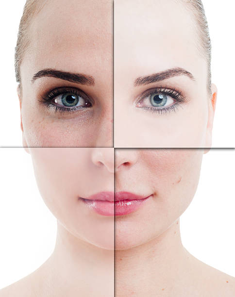 woman face divided in parts with perfect and imperfect skin - imperfection stock photos and pictures