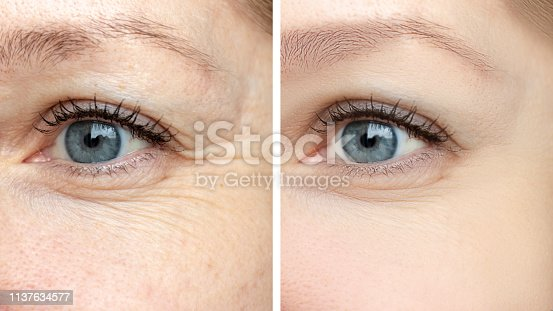Woman face, eye wrinkles before and after treatment - the result of rejuvenating cosmetological procedures of biorevitalization, botox and pigment spots removal.