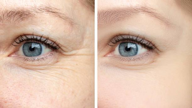 여자 얼굴, 눈 주름 치료 전후-생물 반응 화, 보톡스 및 색소 반점 제거의 미용 학적 절차를 젊 어지게 하는 결과 - 주름 뉴스 사진 이미지