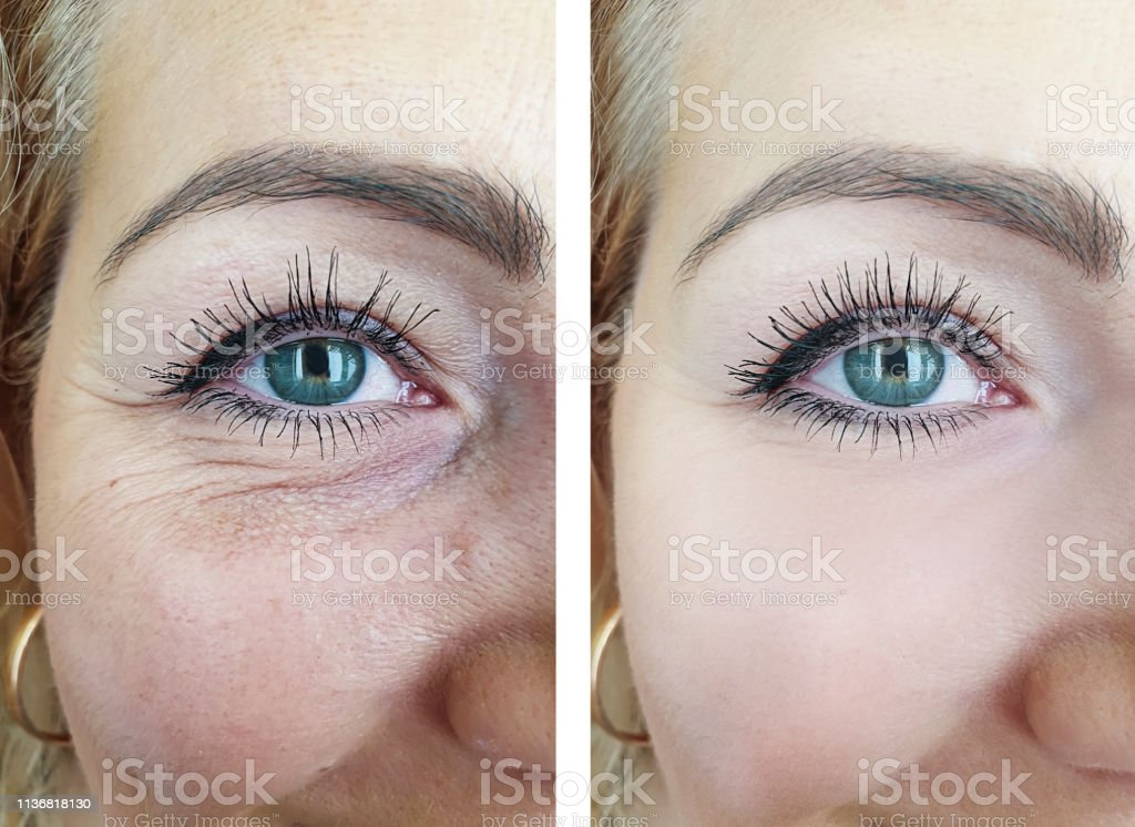 woman face eyes wrinkles before and after procedures