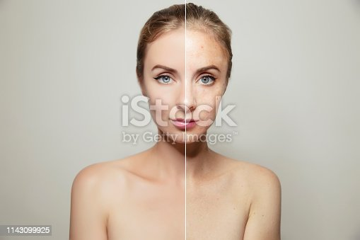 istock woman face portrait with clear and pimpled skin 1143099925