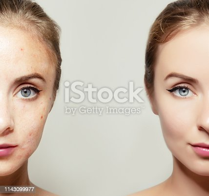 istock woman face portrait with clear and pimpled skin 1143099977