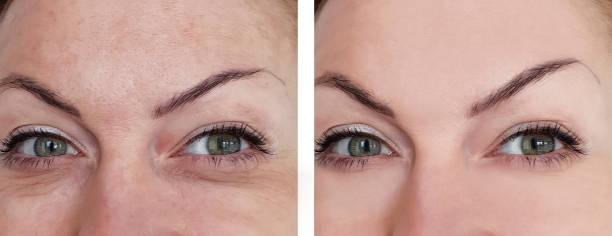 kvinna ansikte skrynkelfritt före och efter förfaranden - filler swollen bildbanksfoton och bilder