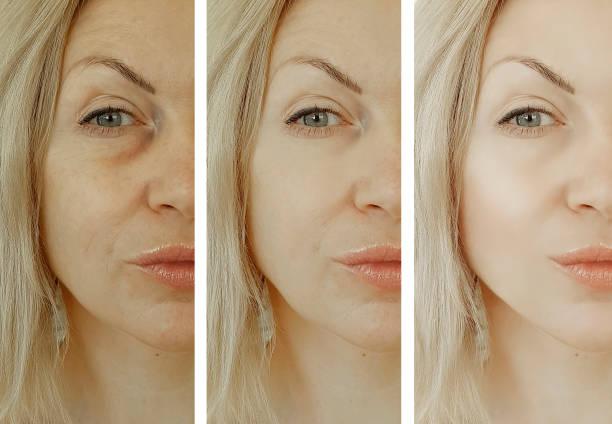 kvinna ansikte rynkor efter behandlingar - filler swollen bildbanksfoton och bilder