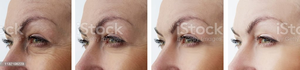 woman face wrinkles after treatments