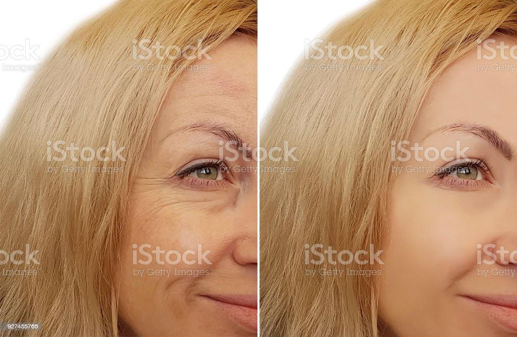 女性の顔のしわの前に、と後 ロイヤリティフリーストックフォト