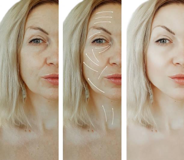 kvinna ansikte rynkor före och efter förfaranden, pil - filler swollen bildbanksfoton och bilder