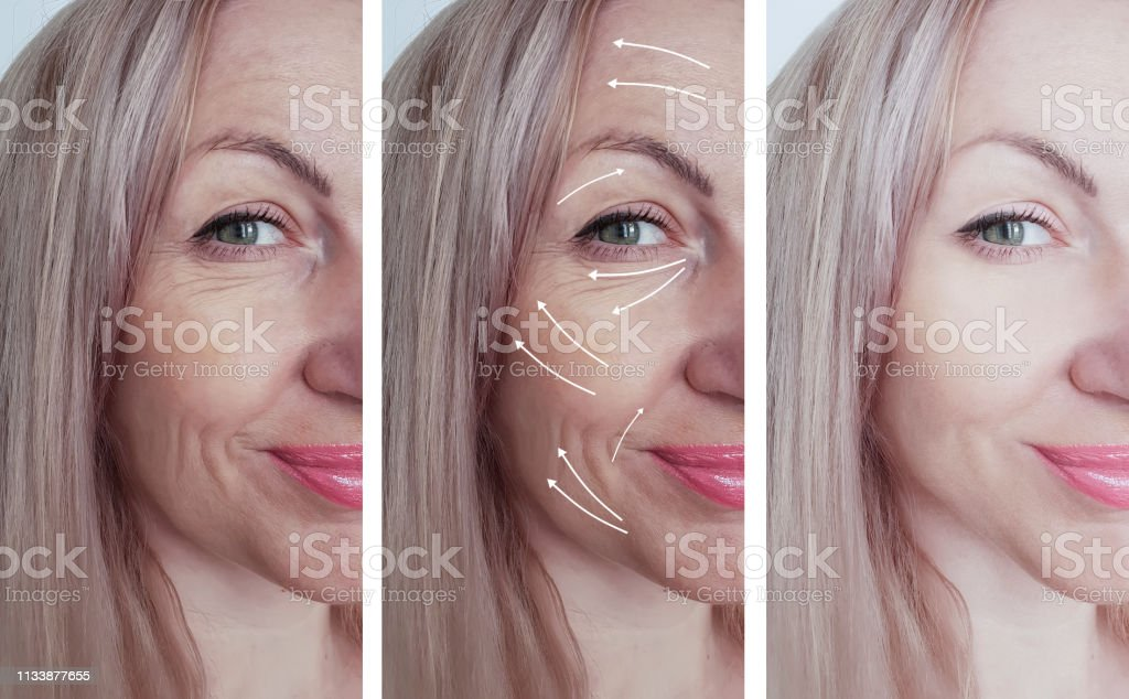 woman face wrinkles before and after procedures arrow