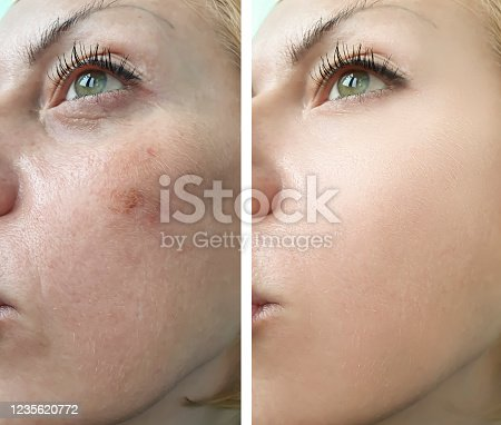 woman face wrinkles before and after treatment, pigmentation