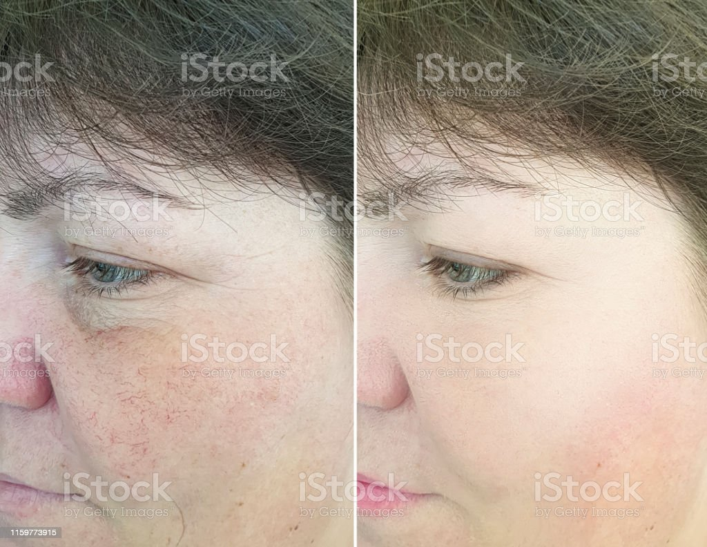 Woman Face Wrinkles Before And After Treatment Rosacea Stock Photo