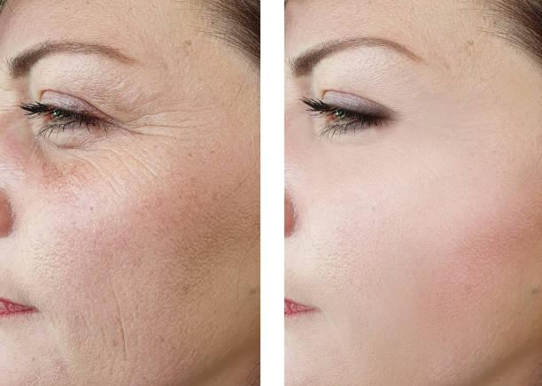 kvinna ansikte rynkor före och efter behandlingar - filler swollen bildbanksfoton och bilder