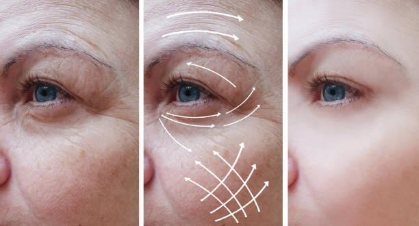 kvinna ansikte rynkor korrigering före och efter förfaranden, pil - filler swollen bildbanksfoton och bilder