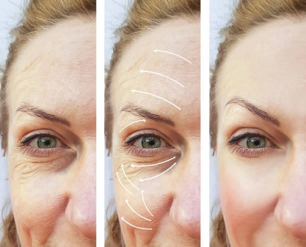 kvinna ansiktsuttryck rynkor korrigering före och efter förfaranden pilen - filler swollen bildbanksfoton och bilder