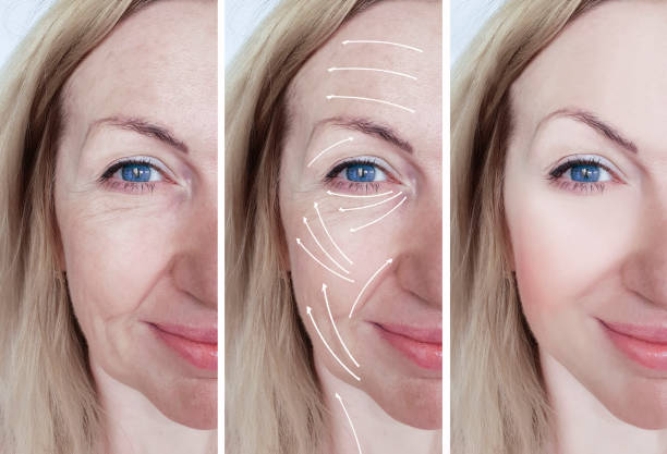 woman facial wrinkles correction before and after procedures arrow woman facial wrinkles correction before and after procedures arrow tighten stock pictures, royalty-free photos & images