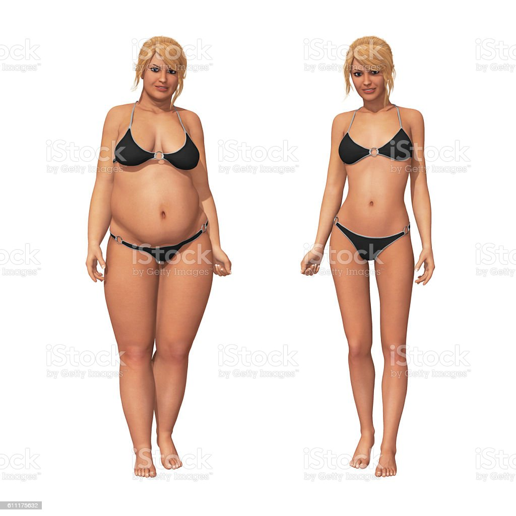Woman Fat to Thin Weight Loss Transformation - Stock image .