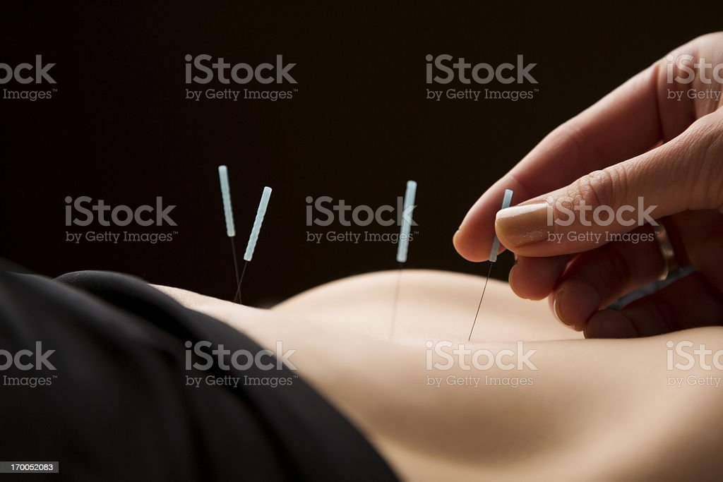 Woman getting acupuncture treatment at the spa stock photo