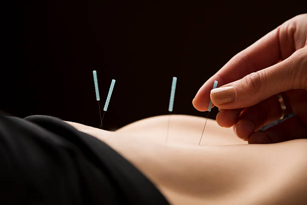 woman getting acupuncture treatment at the spa - acupuncture stock photos and pictures