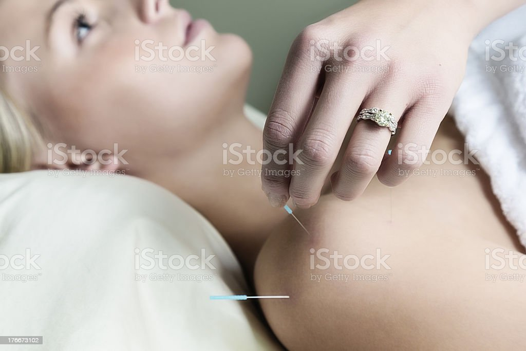 Woman Getting Acupuncture Treatment royalty-free stock photo