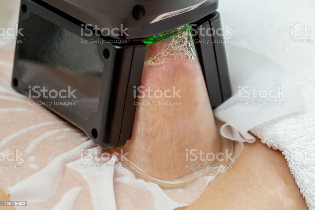 Woman getting cryolipolysis fat treatment in professional cosmetic cabinet stock photo