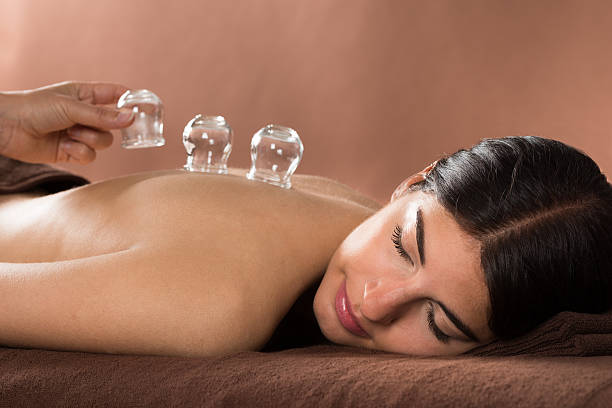 woman getting cupping treatment at spa - cupping therapy stock photos and pictures