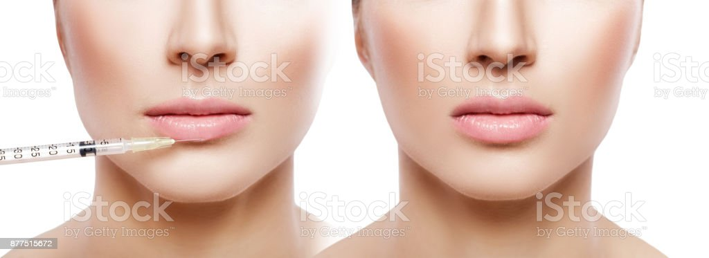 woman getting injection on lips. stock photo