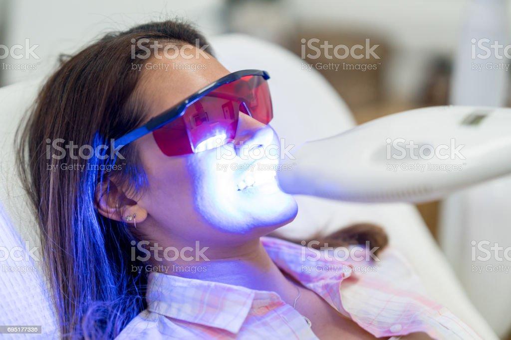 Frau bekommen Laser Zahnaufhellung – Foto