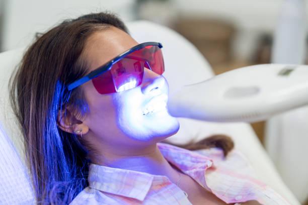 vrouw laser tanden whitening - tanden bleken stockfoto's en -beelden