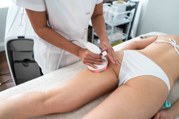 Woman getting laser treatment at the spa stock photo