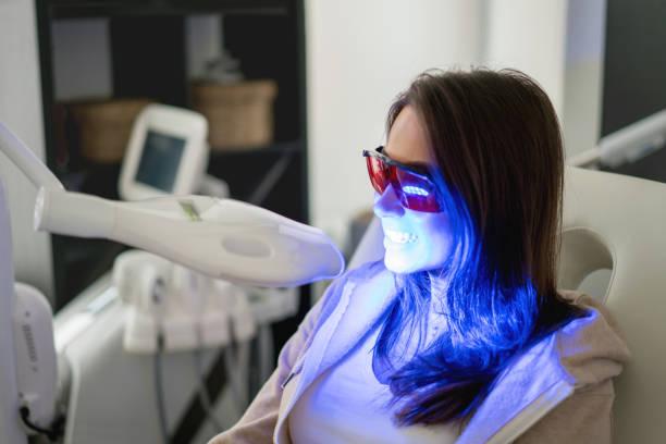 vrouw tanden whitening met laser - tanden bleken stockfoto's en -beelden