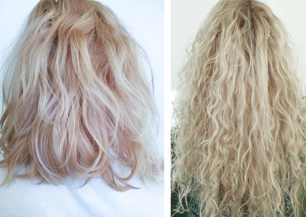 vrouw haar gekweekt voor en na, behandeling - hair grow cyclus stockfoto's en -beelden