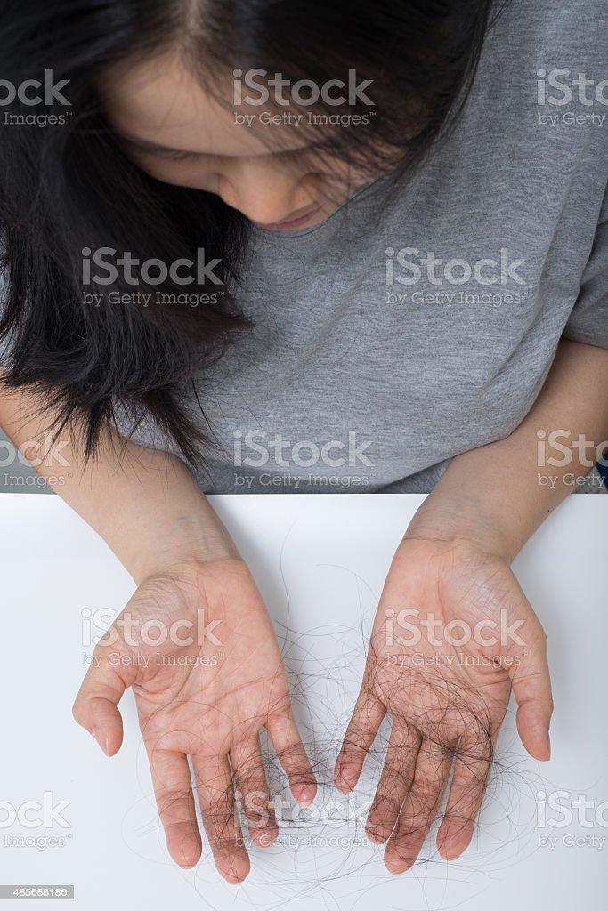 woman hair loss problem stock photo