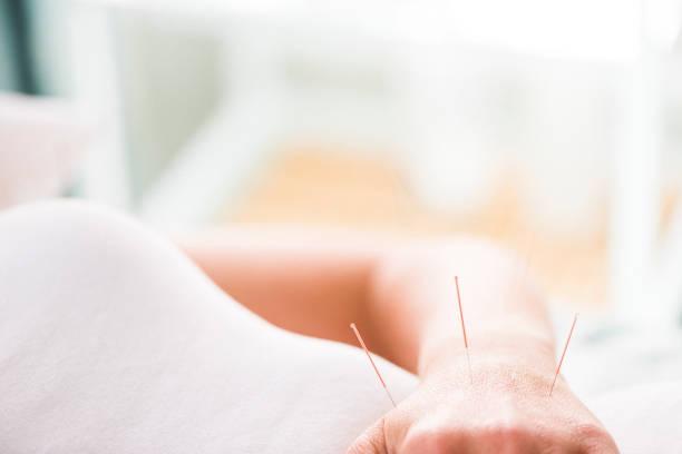 femme, avoir des traitements d'acupuncture - acupuncture photos et images de collection