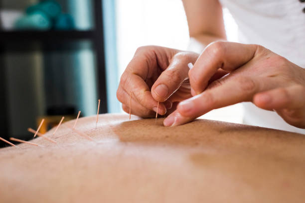 Woman having acupuncture treatment stock photo