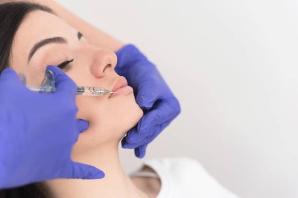 Woman having lower lip filler stock photo