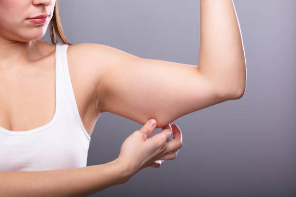 1 089 Cellulite Arms Stock Photos Pictures Royalty Free Images Istock