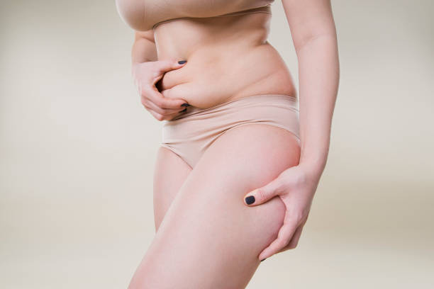 Woman holding fold of skin, cellulite on female body Woman holding fold of skin, cellulite on female body, beige background adipose cell stock pictures, royalty-free photos & images