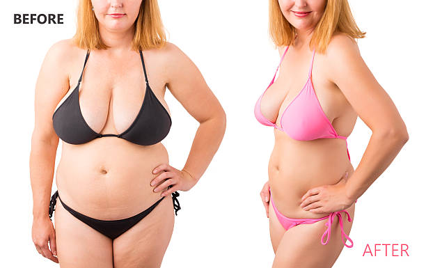 woman in bikini posing before and after weight loss - mollige frauen fotos stock-fotos und bilder