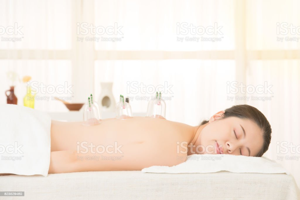 Woman in medical cupping therapy