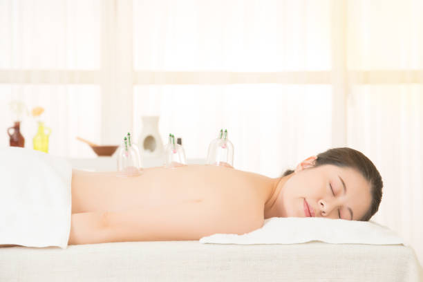 woman in medical cupping therapy - cupping therapy stock photos and pictures