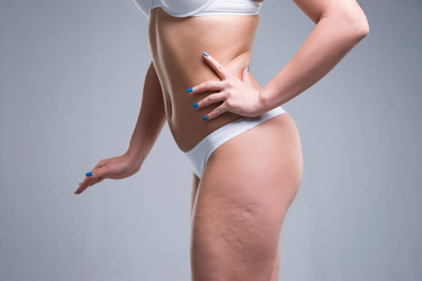 Woman in white underwear, cellulite on female body stock photo