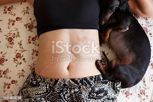 Woman leaning dow showing her liver transplant scars .