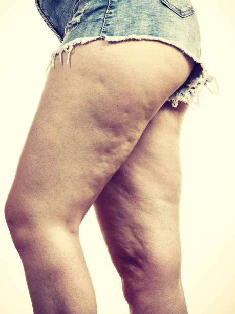 Woman legs with cellulite skin stock photo